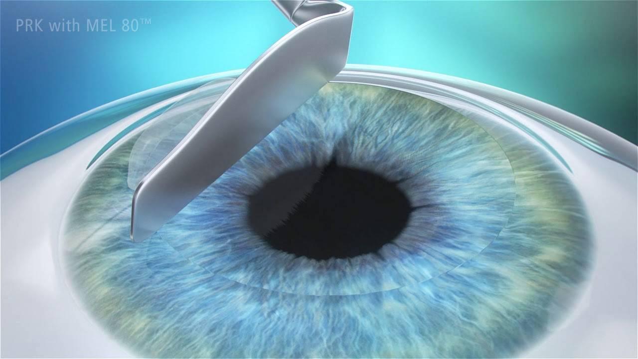 Смайл (relex smile) и фрк (prk) - сравнение методов лазерной коррекции зрения