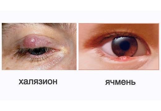 Ячмень или халязион: чем отличаются патологии, как определить, что появилось на глазу