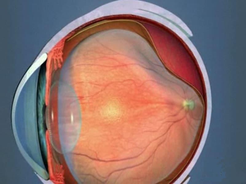 Отслоение сетчатки: симптомы, глаза, признаки, лечение, на ранних сроках
