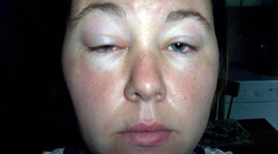 Убираем аллергический отек глаз в домашних условиях: 10 эффективных методов