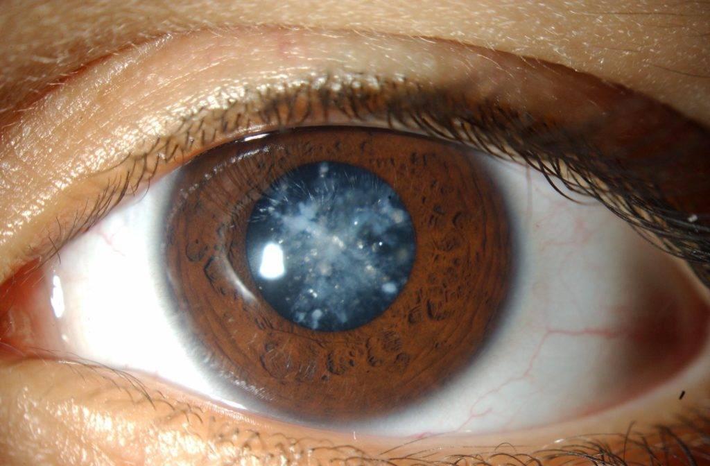 Факосклероз глаз - что это такое? склероз хрусталика глаза: причины, симптомы и лечение