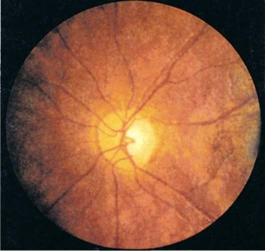 Заболевания зрительного нерва. воспаление, атрофия зрительного нерва и др.