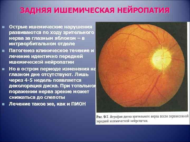 Передняя и задняя ишемическая нейропатия зрительного нерва