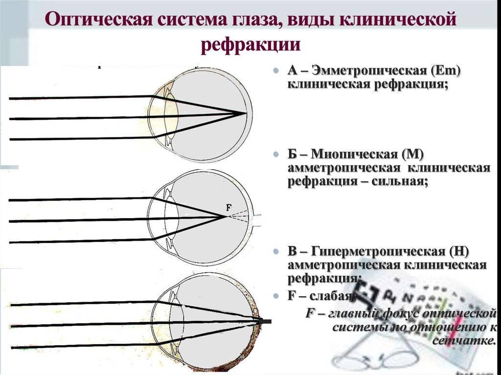 Рефрактометрия глаза, типы рефракции, особенности диагностики