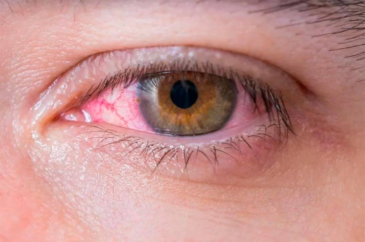 Гиперемия конъюнктивы: глаз, что это такое, глазного яблока, венозное полнокровие