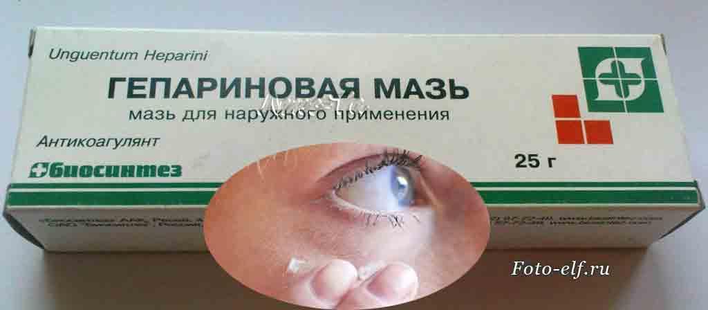 Средство от отеков под глазами – лучшая противоотечная мазь