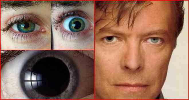 Мутные глаза у человека: причины помутнения белков, роговицы, пятна перед глазами, лечение, диагностика