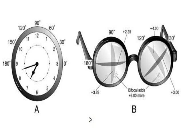 Пересчет цилиндров при астигматизме калькулятор