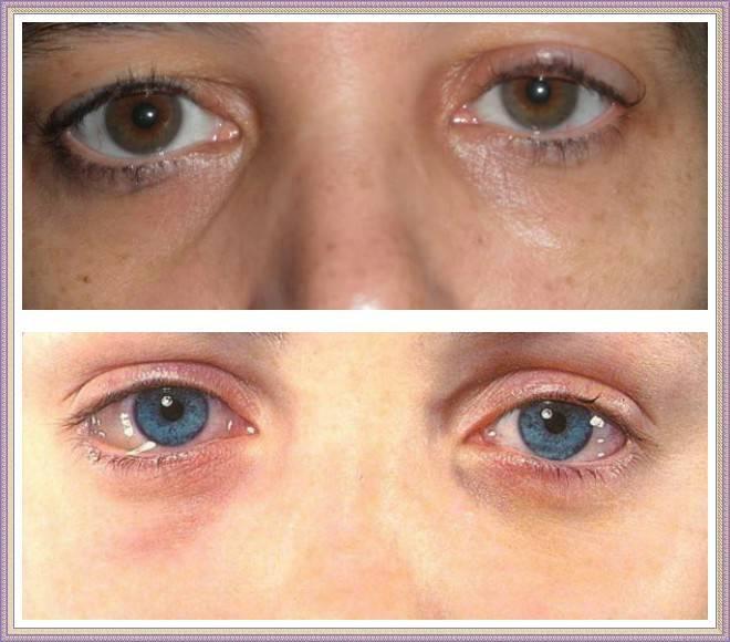 Как снять отёк с глаза после удара - советы врачей oculistic.ru как снять отёк с глаза после удара - советы врачей