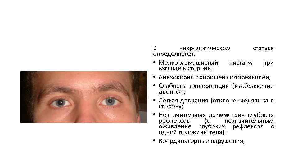 Горизонтальный нистагм: причины, симптомы и лечение
