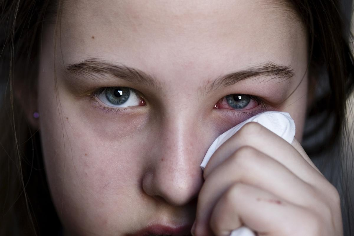 Аллергия на линзы – может ли быть, реакция на жидкость, раствор
