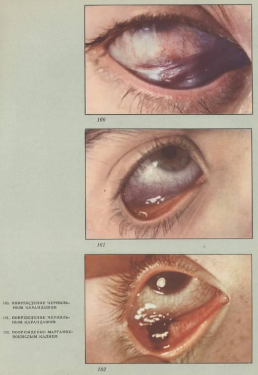 Контузия глазного яблока или ушиб глаза, воспаление и лечение