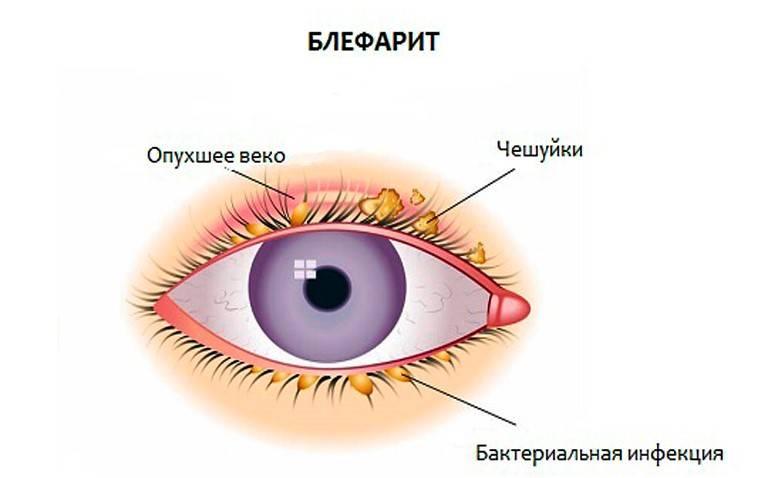 Покраснение глаз при простуде - причины и последствия