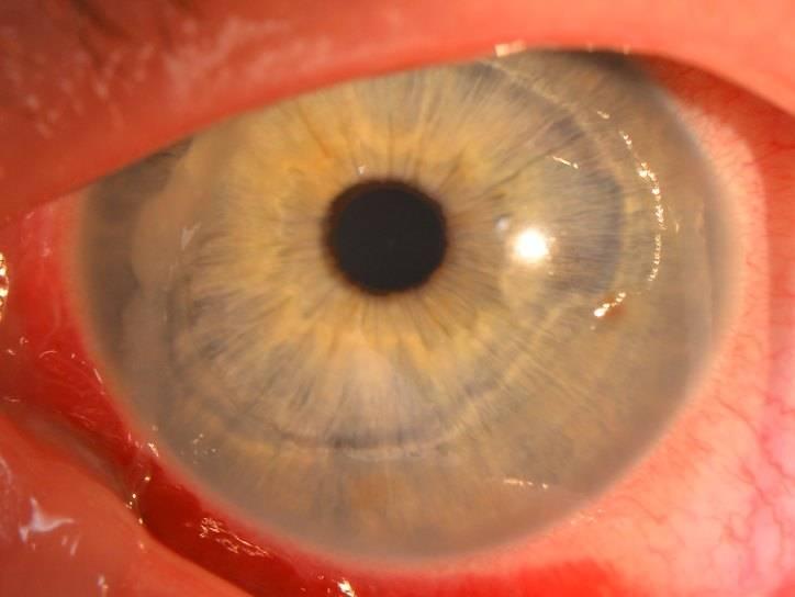 Дистрофия роговицы глаза - что это, лечение, причины и симптомы