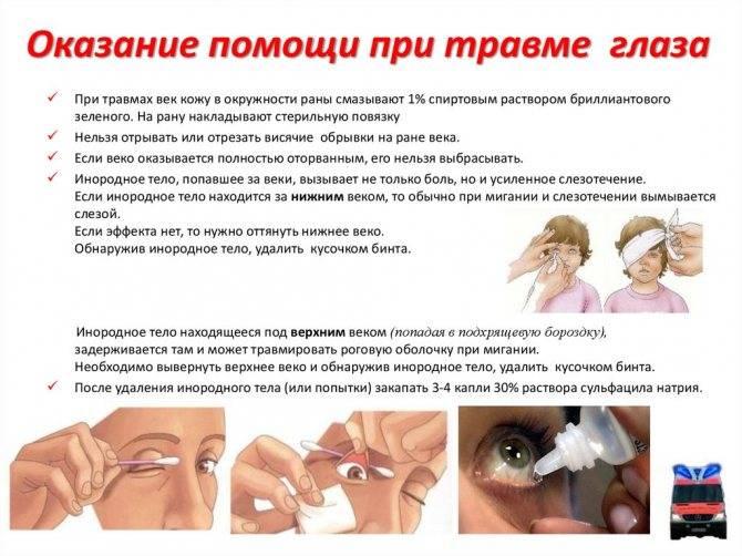 Инородное тело в глазу - ощущение, удаление