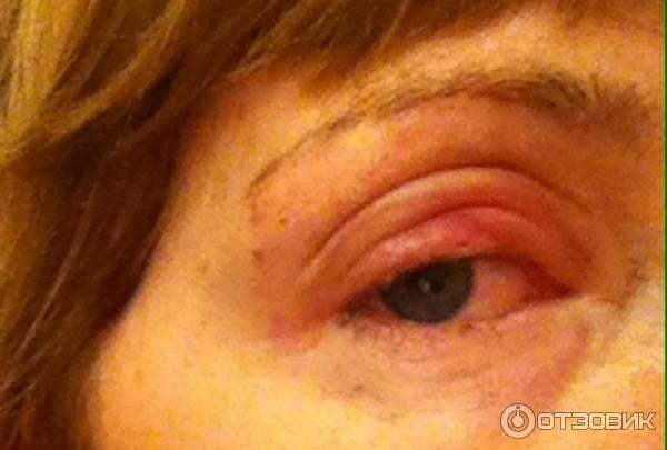 Лечение глазных болезней: удаление халязиона
