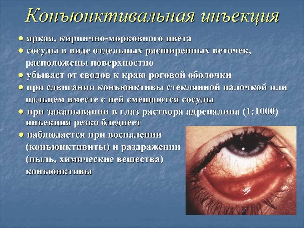 Гиперемия конъюнктивы глаз