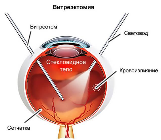 Витрэктомия - что это, как проводят, последствия, отзывы после операции