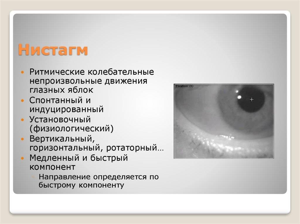 Причины развития горизонтального нистагма, симптомы и методы лечения, врожденная или приобретенная болезнь