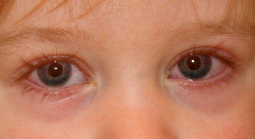 У новорожденного красные глаза после родов: почему краснеет белок у младенца, причины и симптомы у ребенка