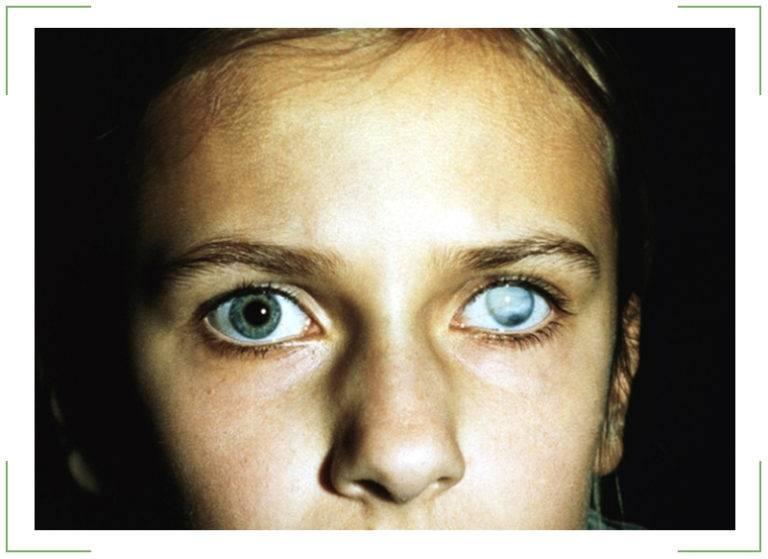 Бельмо на глазу – лейкомы глаза — офтальмология
