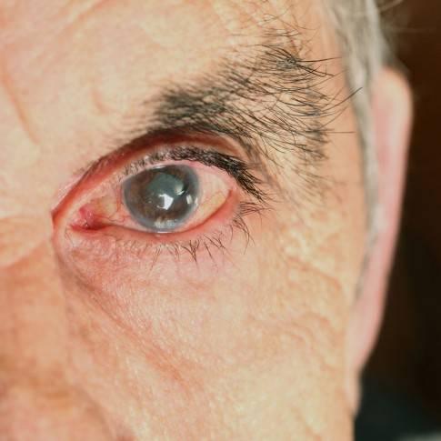 Один глаз видит хуже другого - почему левый или правый глаз видит плохо