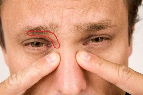 Если болит правая сторона головы и отекает правый глаз