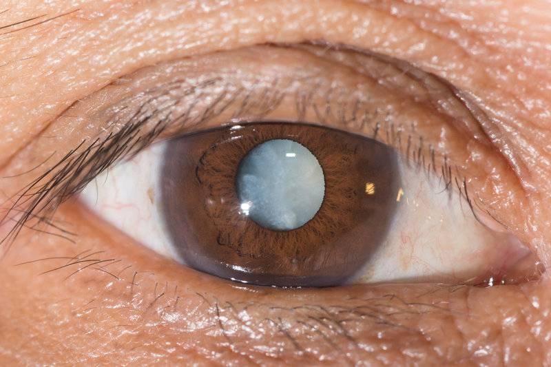Почему у человека мутные глаза и зрачки - болезнь катаракта, причины, хрусталик