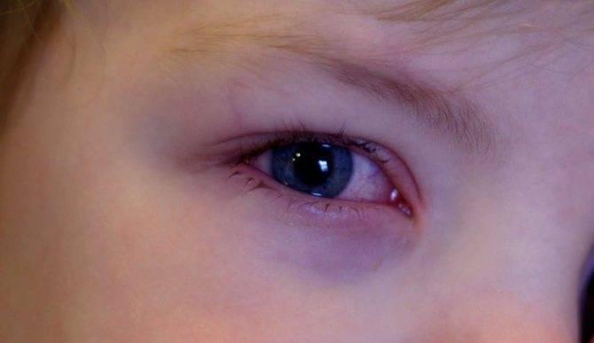 Чем вызываются у ребенка круги под глазами и что делать в таком случае