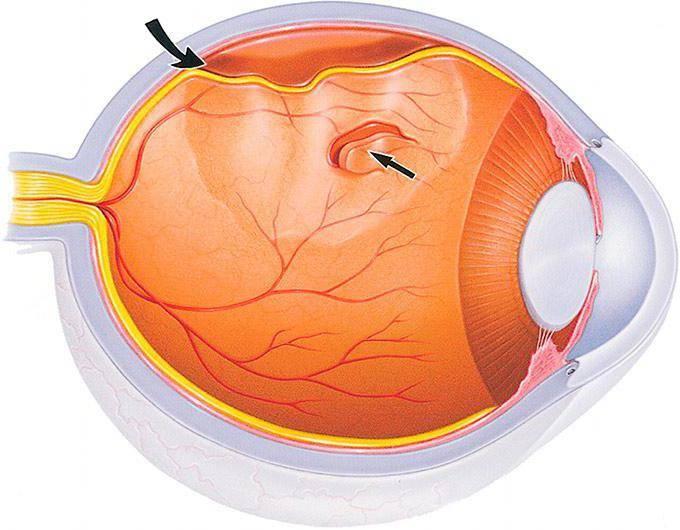 Отслойка сетчатки глаза: через какое время восстанавливается зрение
