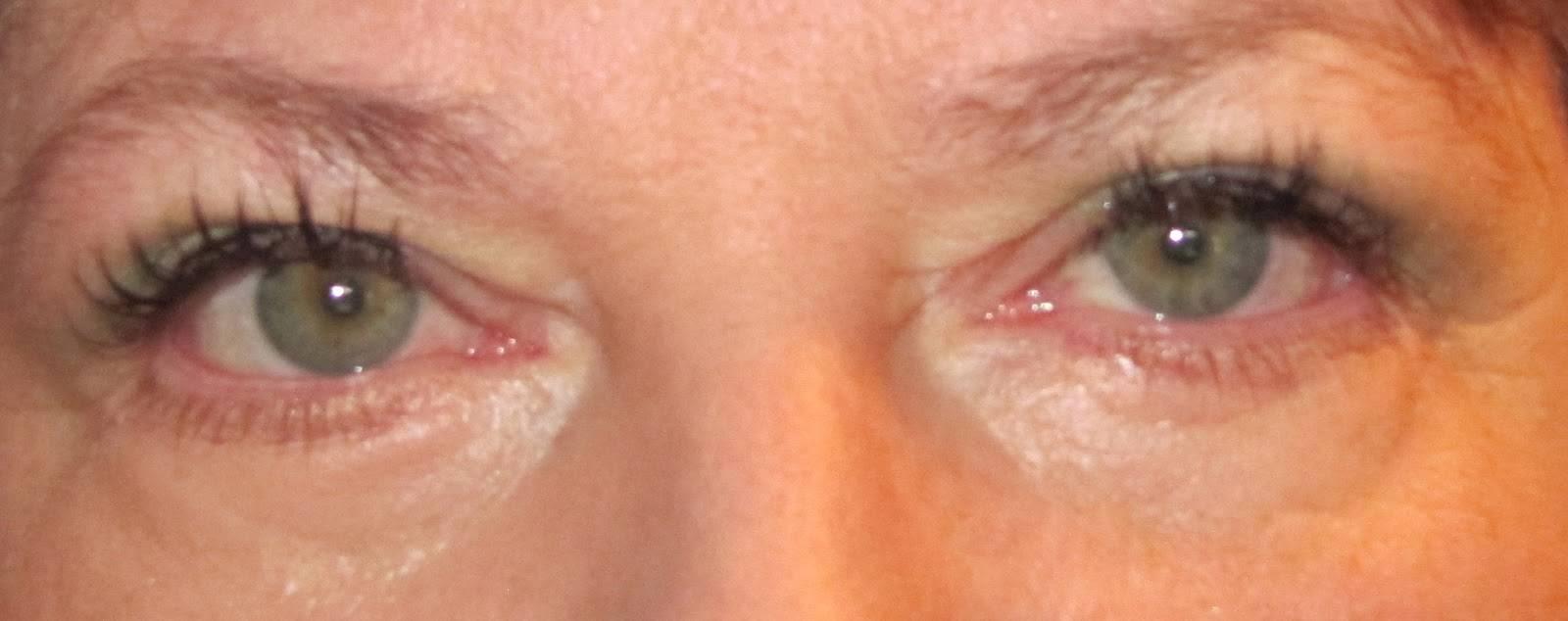 Воспалительные заболевания век (блефарит, ячмень)