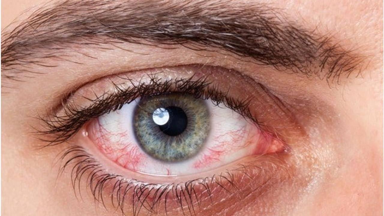 Синдром сухого глаза симптомы и лечение у ребенка - лечение