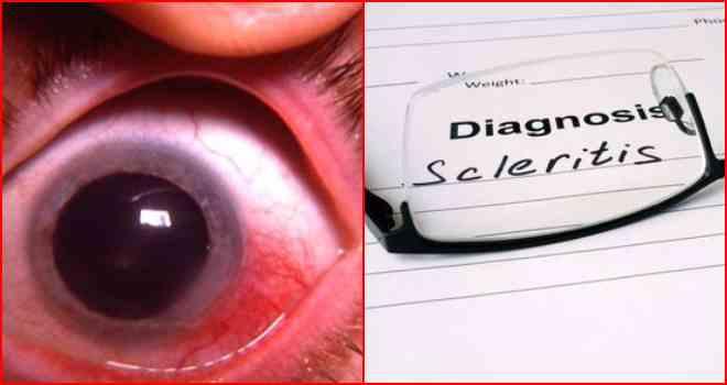 Эписклерит глаза: симптоматика и причины возникновения заболевания, методы лечения