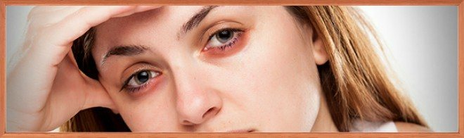 Причинные факторы появления красных отеков под глазами