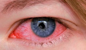 Склерит глаза — причины, симптомы и лечение (фото)