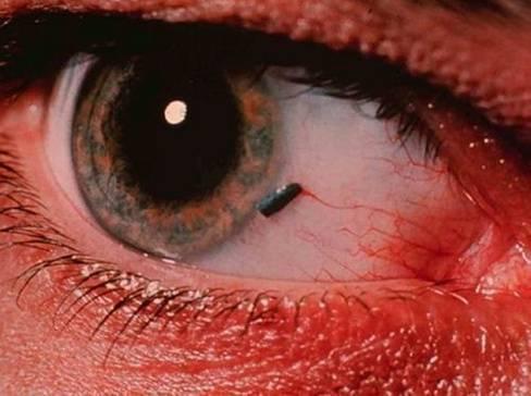 Ссадины,царапиныроговицы глаза: причины, симптомы, лечение