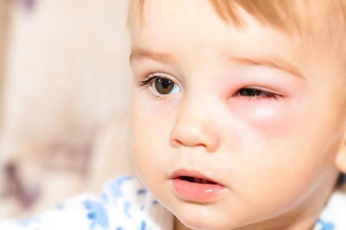 Аллергический конъюнктивит у детей: симптомы и лечение