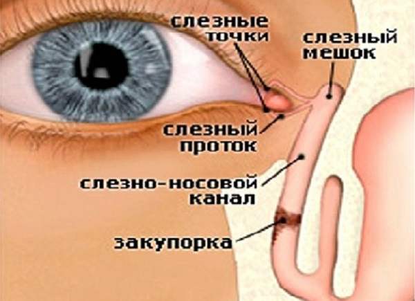 Лечение воспаления забитого слезного канала в глазу у взрослых: симптомы и фото дакриоцистита