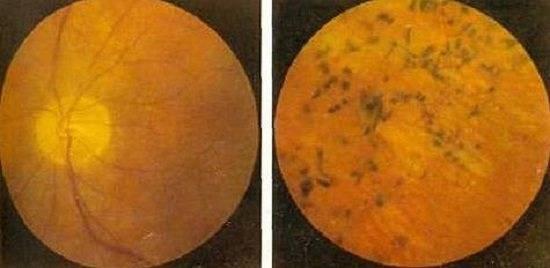 """Эпиретинальная мембрана глаза (целлофановая макула) - причины, диагностика и лечение - moscoweyes.ru - сайт офтальмологического центра """"мгк-диагностик"""""""