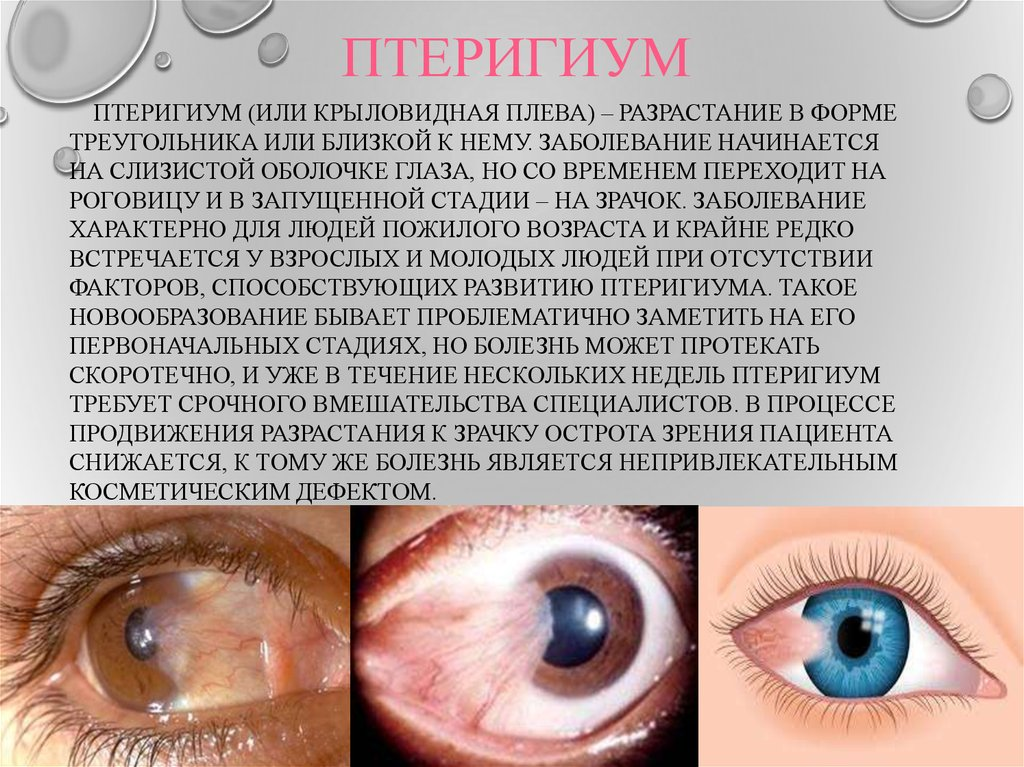 Птеригиум (птеригий, крыловидная плева) глаза: что это такое, степени, лечение (в том числе народными средствами), в каких случаях необходима операция и другие аспекты