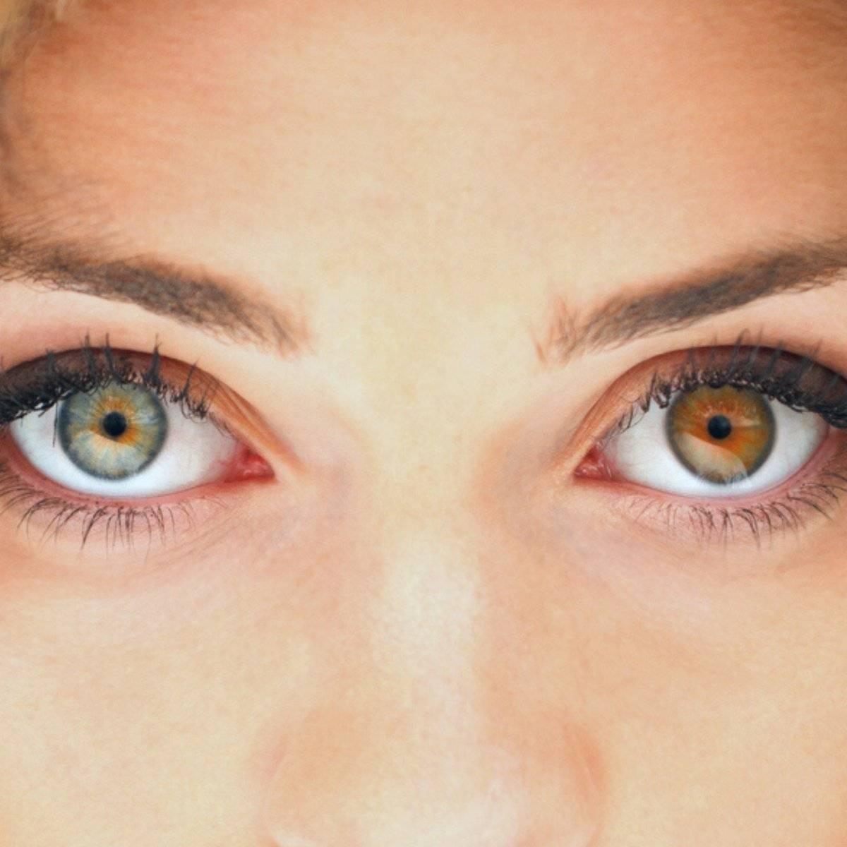 Гетерохромия глаз (пьебалдизм): что это, причины, виды, лечение