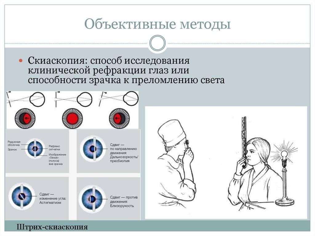 Скиаскопия - метод исследования рефракции глаза