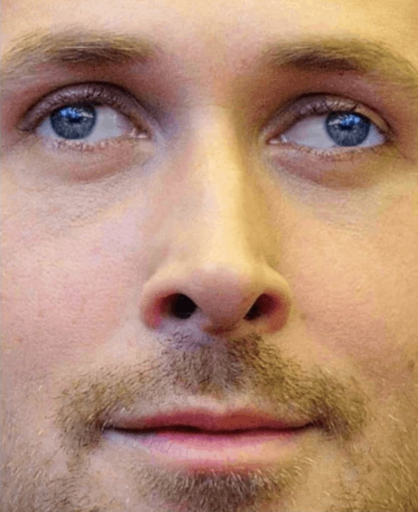 Глаза в разные стороны фото. как называется болезнь, когда глаза в разные стороны смотрят?