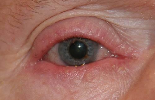 Блефарит — заразен или нет, возможно ли вылечиться? — глаза эксперт