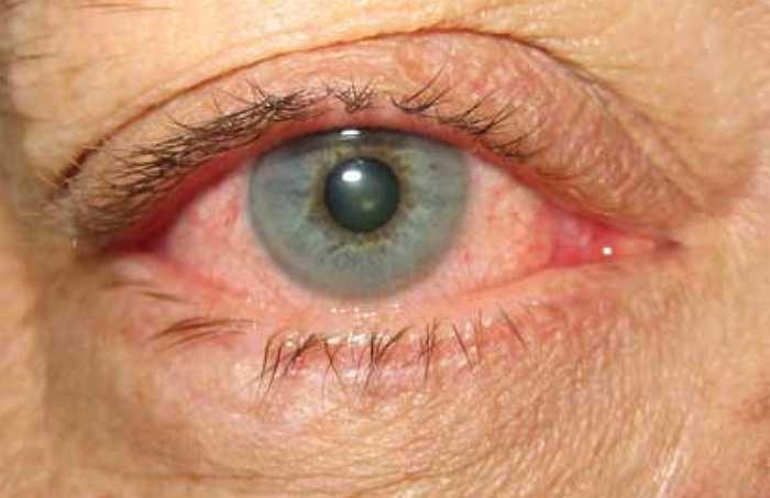 """Блефароконъюнктивит глаз: симптомы, разновидности, лечение - """"здоровое око"""""""