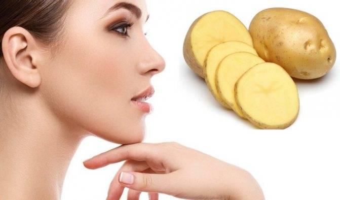 Картошка от синяков под глазами – применение картофеля, рецепты масок для лица от отеков