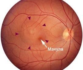 """Центральная серозная хориоретинопатия - """"здоровое око"""""""