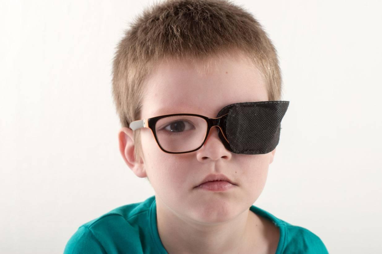 Степени амблиопии у взрослых: фото видов болезни, симптомы и лечение амблиопии глаз