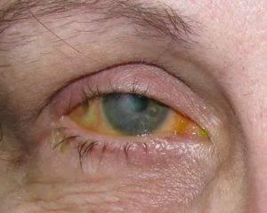 Слезится глаз у взрослого – что делать и чем лечить воспаления