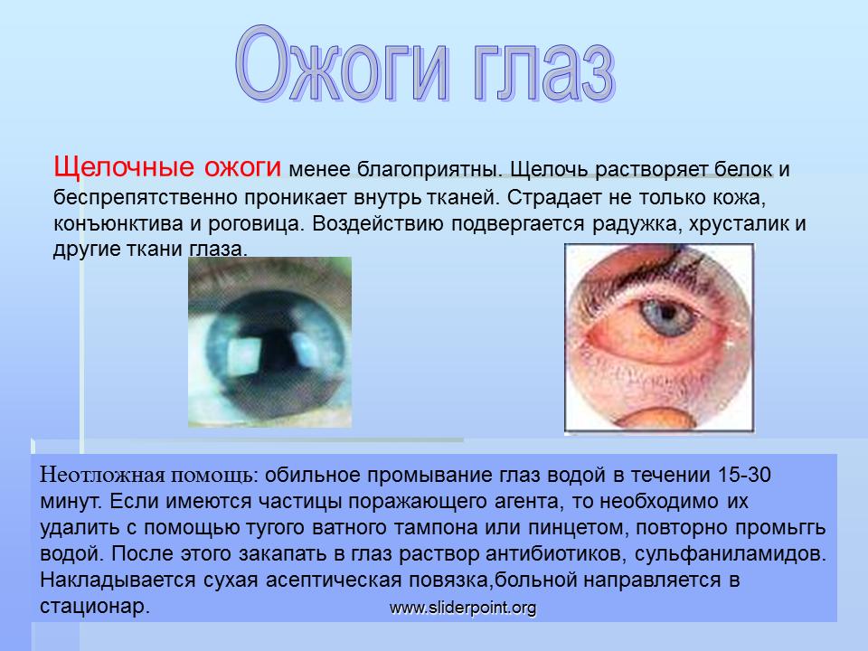 Ожог сетчатки глаза: причины, первая помощь, симптомы, лечение oculistic.ru ожог сетчатки глаза: причины, первая помощь, симптомы, лечение
